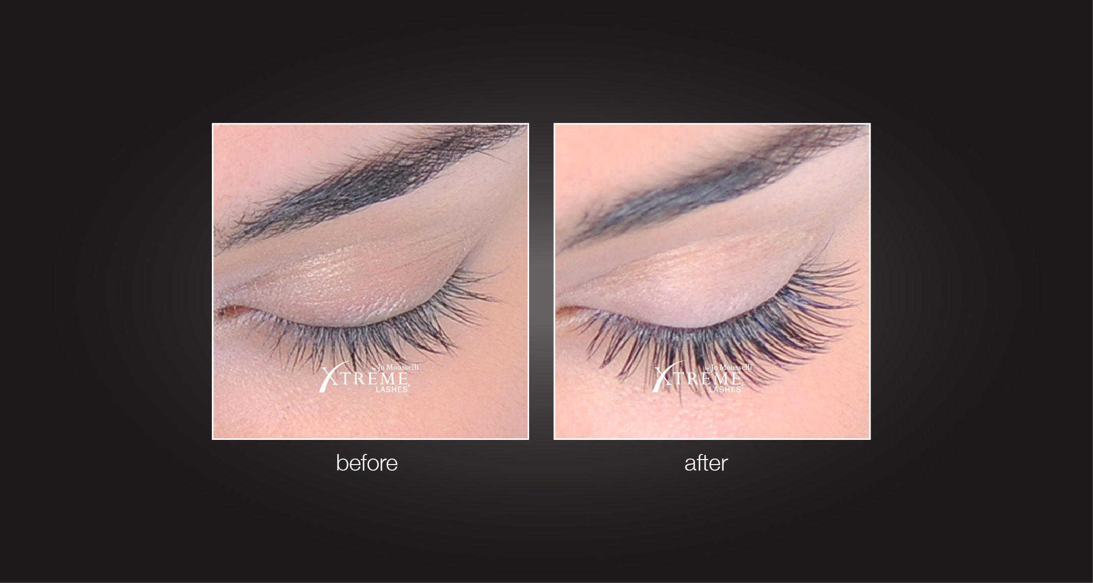 Eyelash Extensions Before After Eyelighting 07