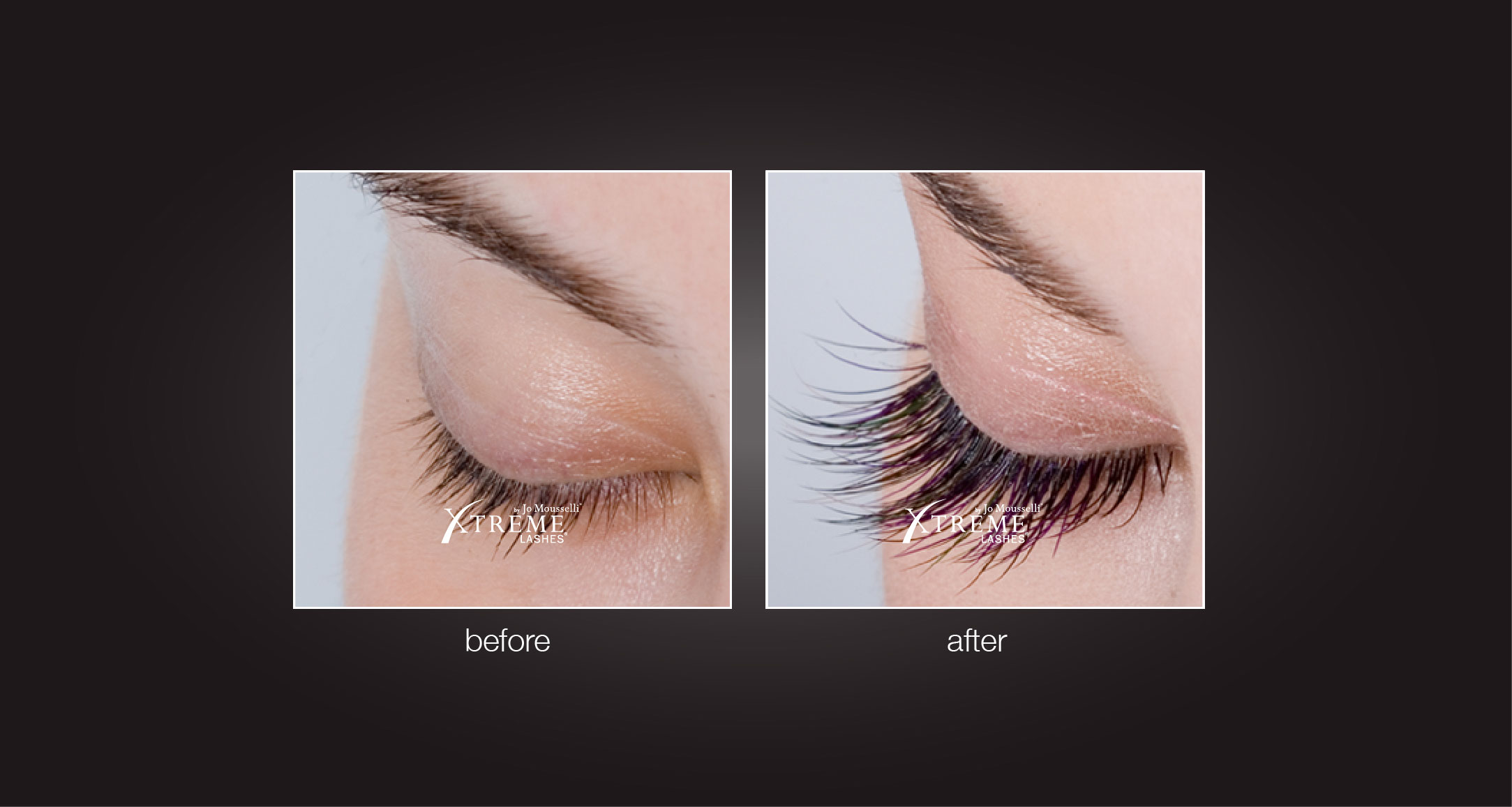 Eyelash Extensions Before After Eyelighting 09